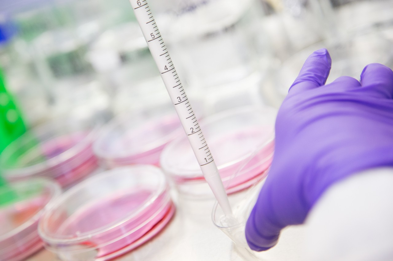 Research on non-invasive prenatal testing