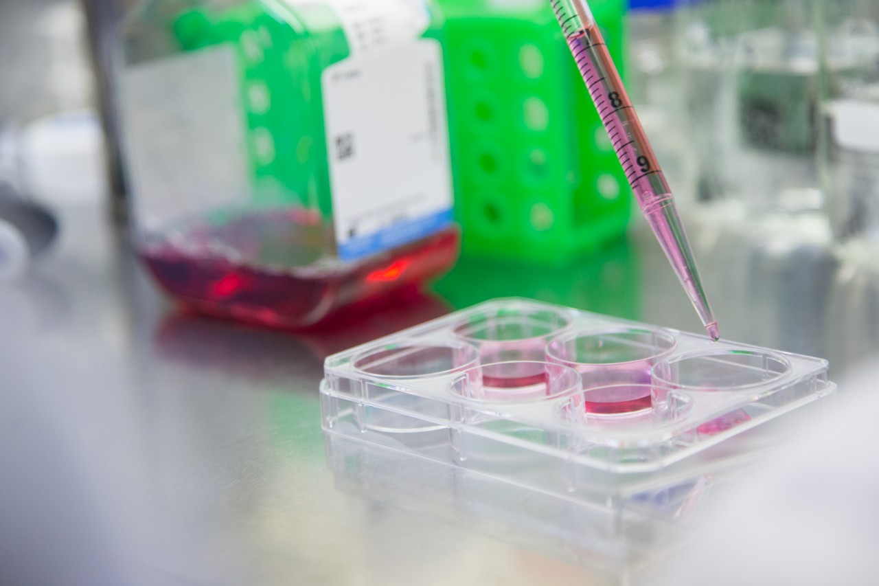 Preimplantation genetic diagnosis: benefits and risk